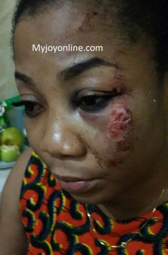 Bruises visible on the left side of Vicky Zugah s face