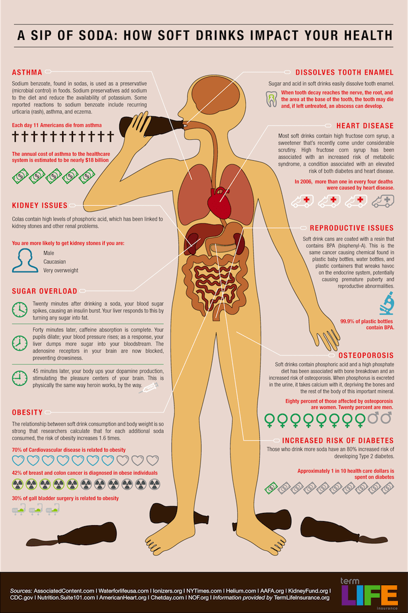 The Many Harmful Effects of Drinking Soda - Infographic