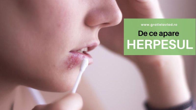 De ce apare herpesul? + peste 10 cauze!