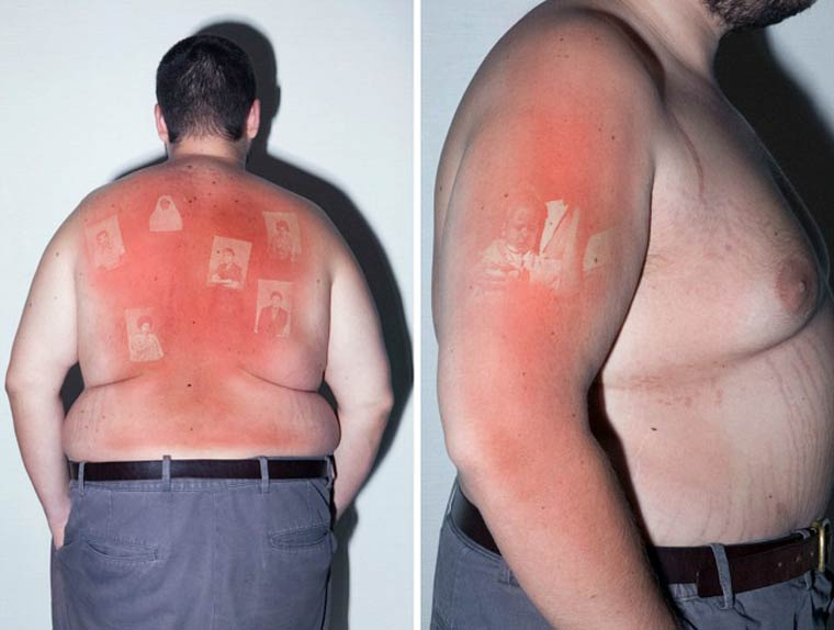 Sunburn Photography