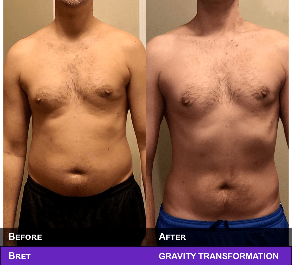 11 Steps To Lose Chest Fat FAST  Gravity Transformation