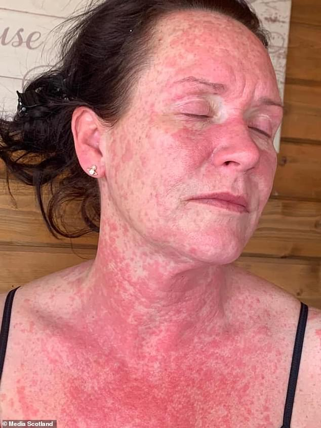 41 Year Old Woman Suffers Unbearable Burning Red Rash On Body From AstraZeneca's COVID-19 Vaccine