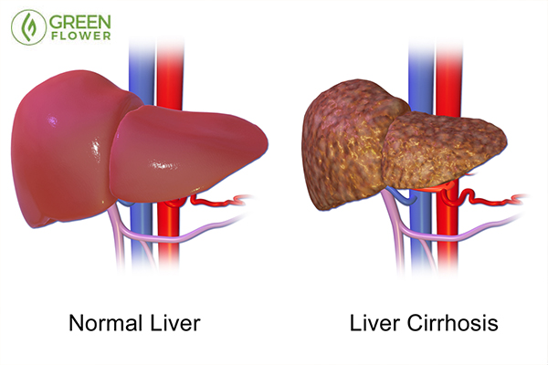 Liver disease graphic