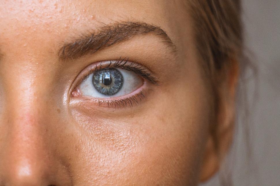 """L'acné adulte, dite """"hormonale"""": comment en sortir de manière durable et naturelle ?"""