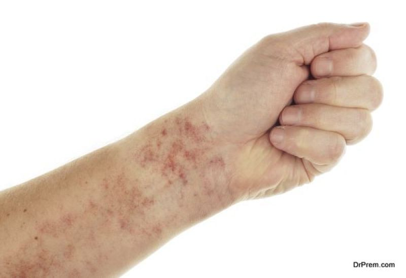 painful rashes
