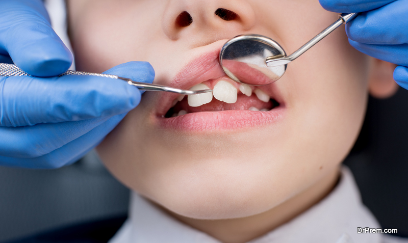 Pediatric Dental Problems