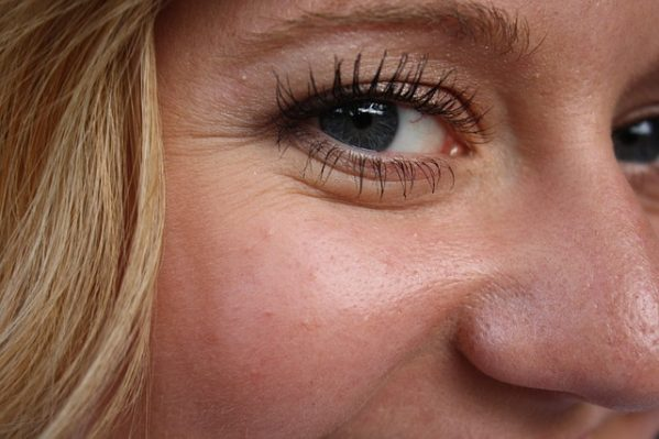 What Causes Wrinkles Under Your Eyes