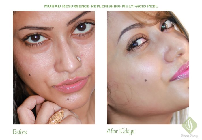 Murad Resurgence Replenishing Multi Acid Peel Review with before-after picture