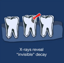 Greenwood-Dental-xrays