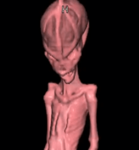 Yet Another South American Alien Turns Out To Be Human