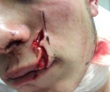 un étudiant qui attaqué au tesson de bouteille Grande Rue