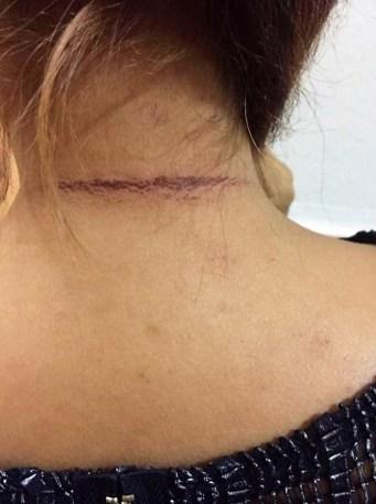 collier arraché en plein jour parc Paul Mistral : des centaines de traumatisés chaque année
