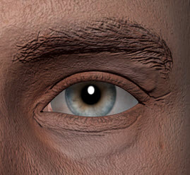 The artist and keratoconus
