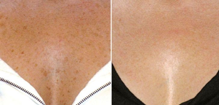 Под грудями появляются коричневые пятна причина. Пигментные пятна на молочной железе