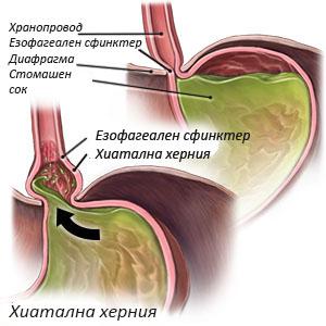 Hyatal hernia