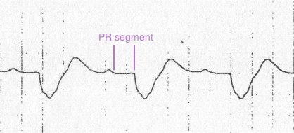 Segment PR prelungit sursă: http://i2.wp.com/lifeinthefastlane.com/wp-content/uploads/2011/02/sine-wave-hyperk.jpg