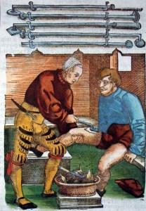Cauterizzazione Antica