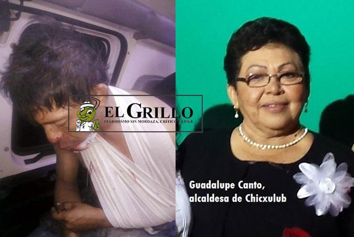 """Policías de Chicxulub Pueblo apalean a un ciudadano, que no se """"mochó con los chescos"""""""