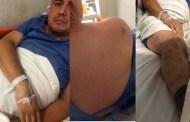 Funcionario de Ticul intenta atropellar a su cuñado y luego lo golpea