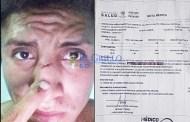 """Abuso de la policía de Cenotillo contra un joven: Un agente """"franco"""" lo lesiona"""