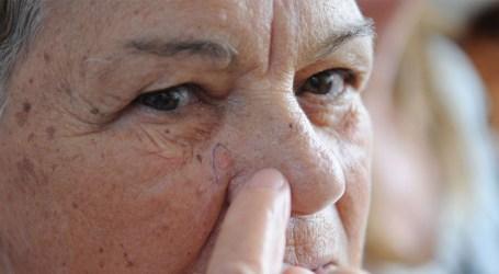 Pesquisadores brasileiros desenvolvem software para diagnosticar melanoma