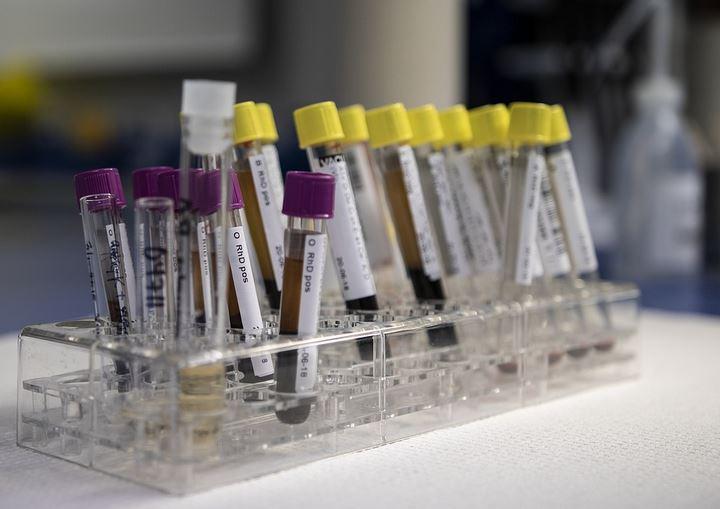 За сутки в Беларуси зарегистрированы 950 пациентов с COVID-19, выписан 1061