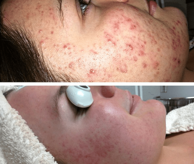 According To The American Academy Of Dermatology Acne Is The Most Common Skin Disorder In The United States Affecting Millions Nationwide