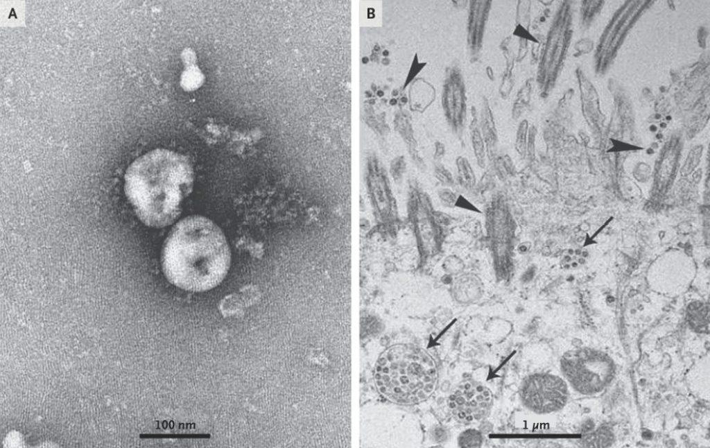मोदी सरकार की गलतियां, नहीं करवाई कोरोना वायरस की जीनोम सीक्वेंसिंग