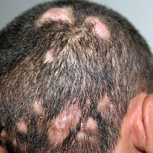 Search Results For Yeast Contamination On Scalp Treatment