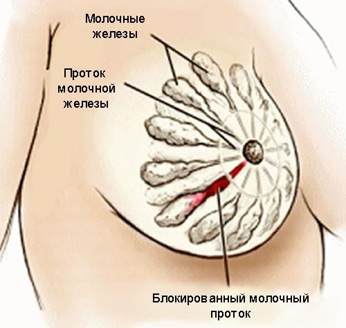 Белая точка на соске - Информация, которая удивляет
