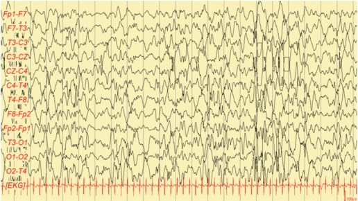 EEG con hipsarritmia.