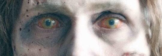 Grybetrotter nektet å både se på, og å fotografere øyet, da det var som verst. Derfor kan vi ikke helt illustrere hvor ille det så ut. Dette zombiebildet er ingenting i forhold. Forestill deg øyet rødere, mørkere, og med en stor bulk på siden.
