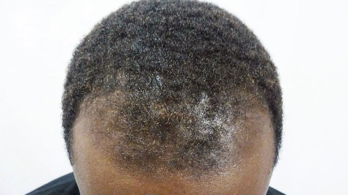 battling male hair loss? here's what you really need to know