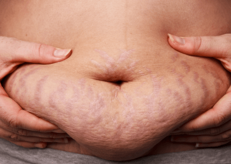 Obesity and leaky gut