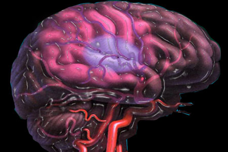 Stroke Risk Linked to Anxiety