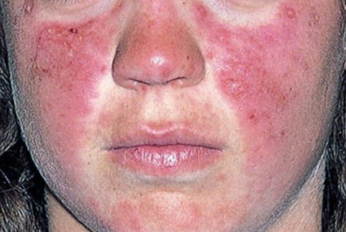 Lupus: Common Symptoms and Treatment Options