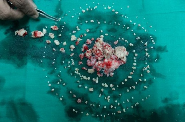 232 Teeth Removed From Mouth of Teenager