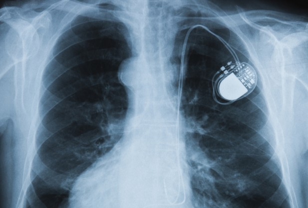 FDA Addressing Cybersecurity for Medical Devices