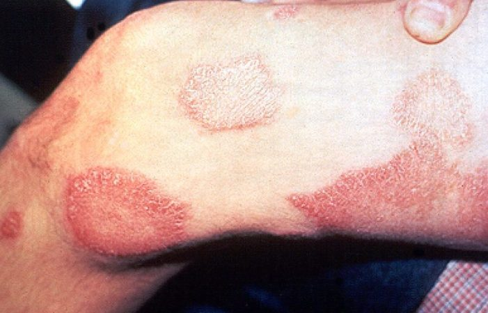 Possible Cases of Leprosy in Southern California School