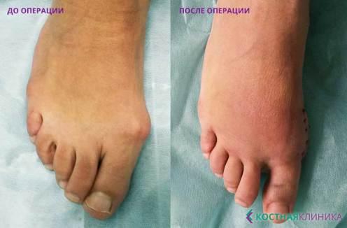 карелия, петрозаводск, лечение, костная клиника, косточки на стопе, травмпункт