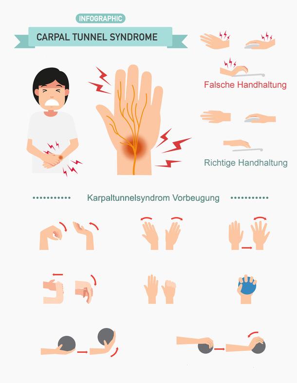 karpaltunnelsyndrom handchirurgie dr
