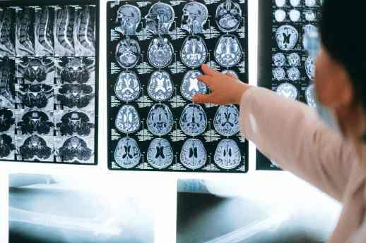 biohacking neurotransmetteurs cerveau