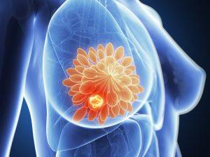 Témoignage : stabilisation d'un cancer métastatique par le régime cétogène entrecoupé de périodes de jeune