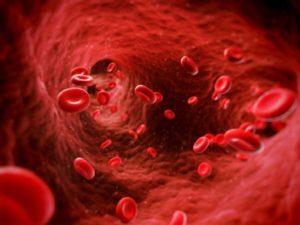 Leucémie aigüe traitée par DCA, acide lipoïque et hydroxycitrate chez un Québécois de 44 ans