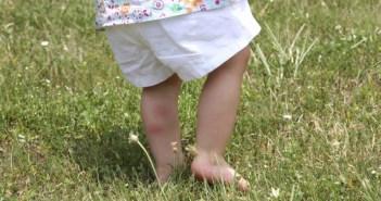 bug-bites-on-leg