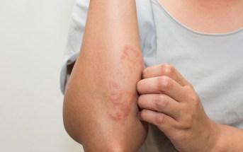 os-sintomas-da-dermatite-atopica
