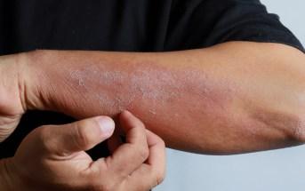 como-prevenir-e-atenuar-a-dermatite-atopica