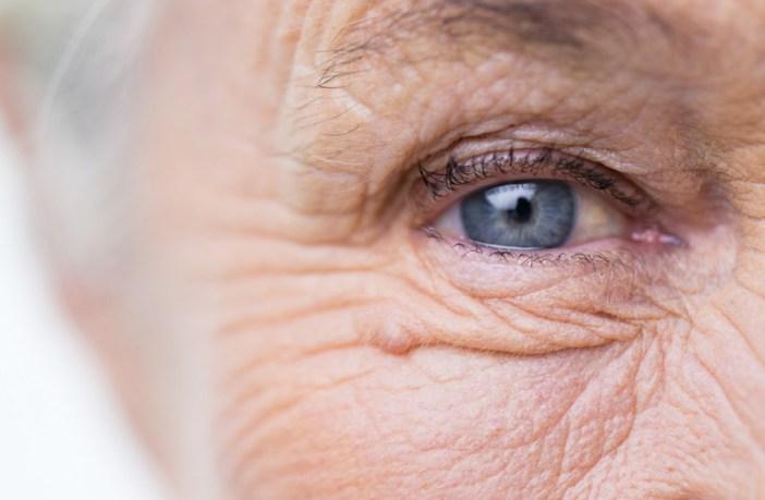 dmri-voce-conhece-a-doenca-ocular-que-afeta-20-das-pessoas-acima-dos-80-anos