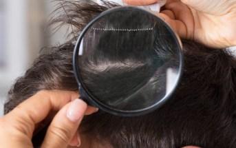 atencao-ao-couro-cabeludo