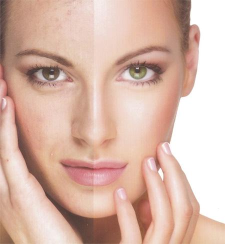 Peeling facial: como funciona, efeitos e mais!